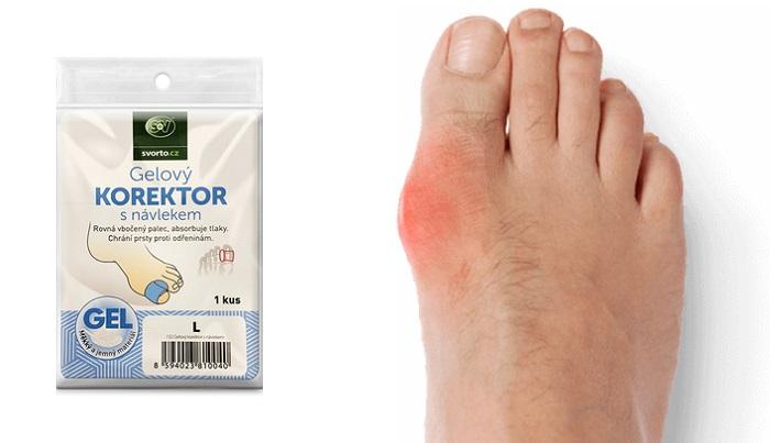 Valgu-correct de la tulpina valgus a piciorului: elimină inflamația și durerea!
