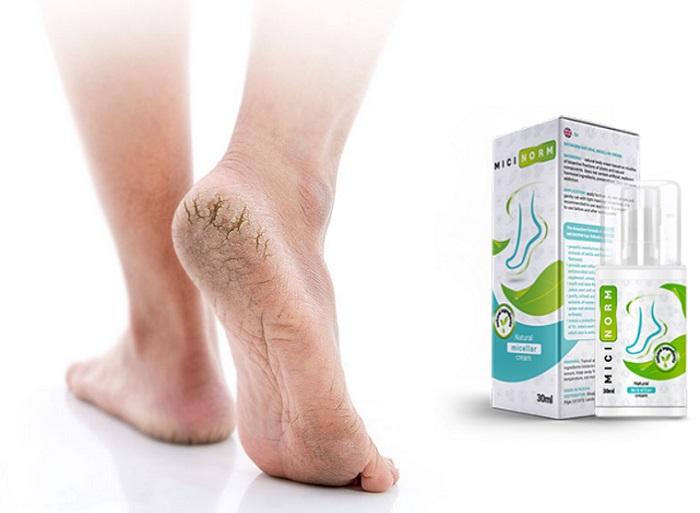 Micinorm de la ciuperca piciorului: garanția sănătății picioarelor tale!