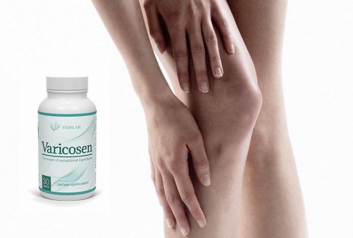 Varicosen de la vene varicoase: va asigura frumusetea si sanatatea picioarelor tale!