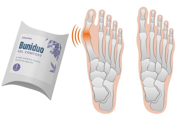 Buniduo Gel Comfort împotriva lui Valgus: picioare sănătoase fără intervenție chirurgicală!