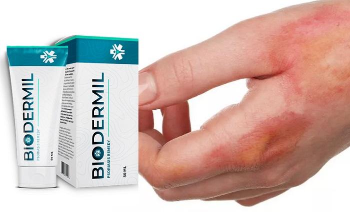Biodermil din psoriazis: piele curată și sănătoasă, fără mâncărime și plăci!