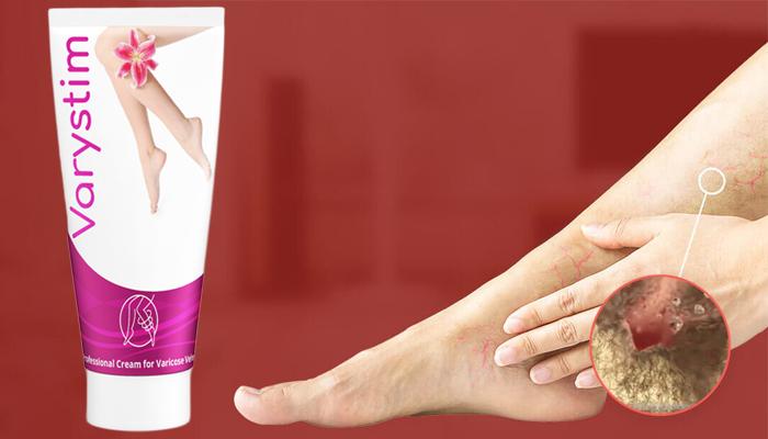 Varystim împotriva varicelor: picioare frumoase și sănătoase