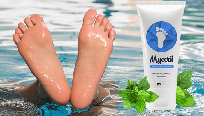 Myceril împotriva micozei: aceasta este o metodă simplă de a scăpa de micoză pentru totdeauna!